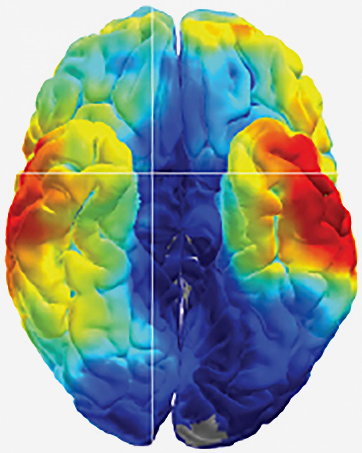 Studies of epilepsy patients uncover clues to how the brain remembers.
